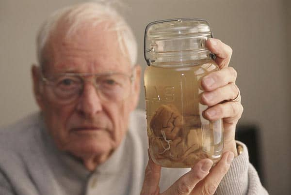 Pathologist Thomas Harvey (1912 - 2007) Holds the Brain of Theoretical Physicist Albert Einstein in A Jar