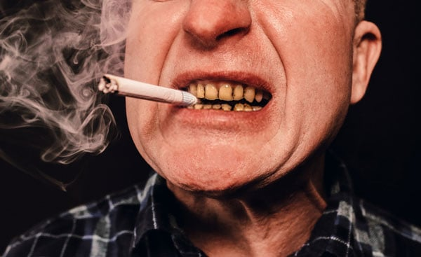 Smoking causes yellow teeth