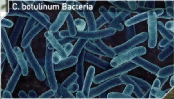 Botulism Bacteria