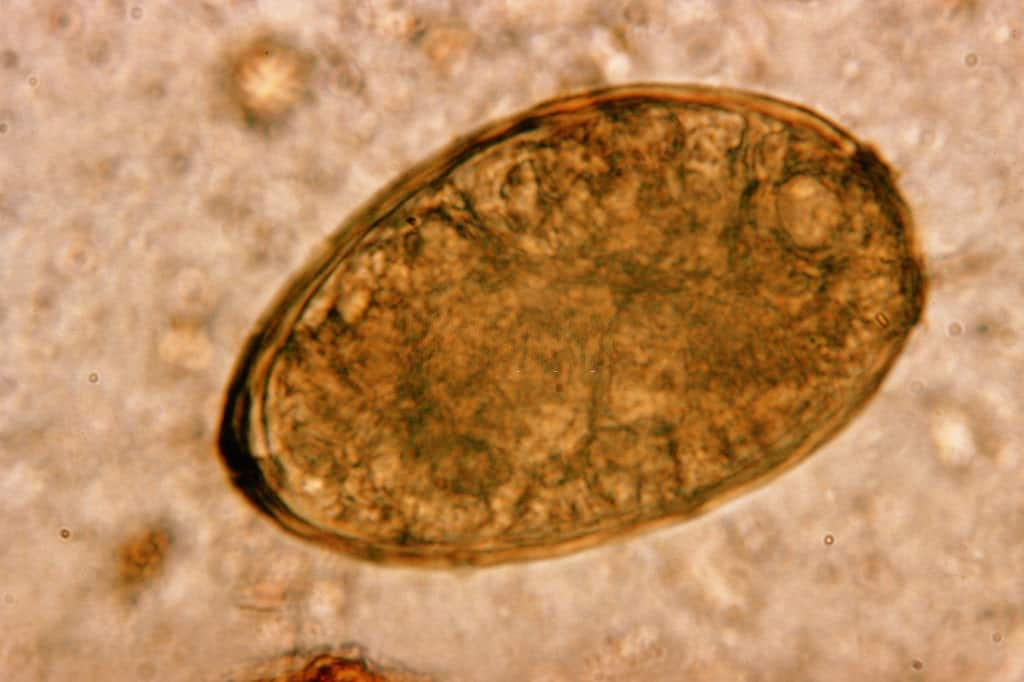 lung fluke, parasite facts