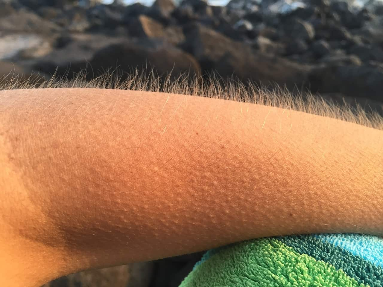goosebumps, arm, human body facts