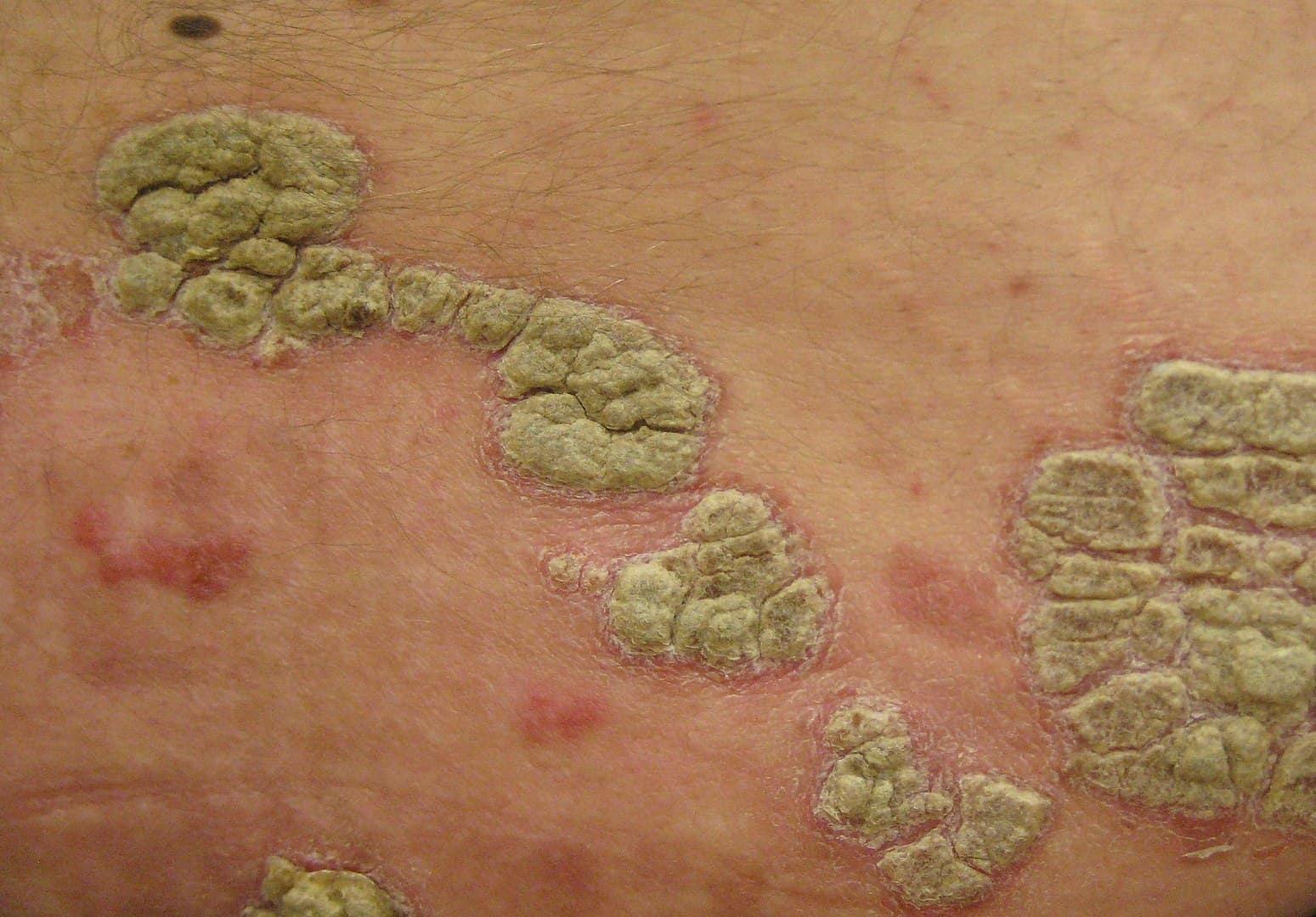 psoriasis, lupus facts