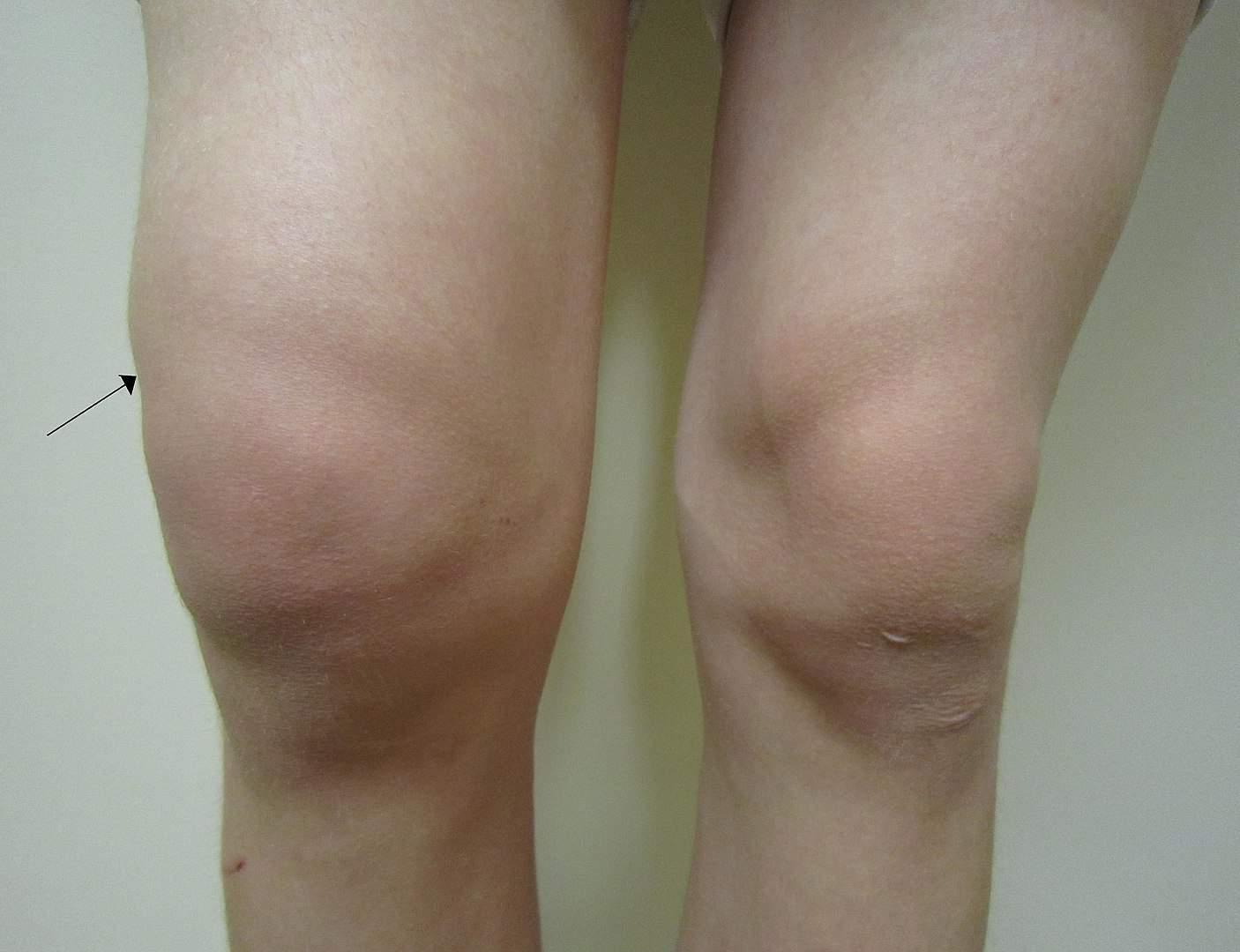 swollen knee, lupus facts